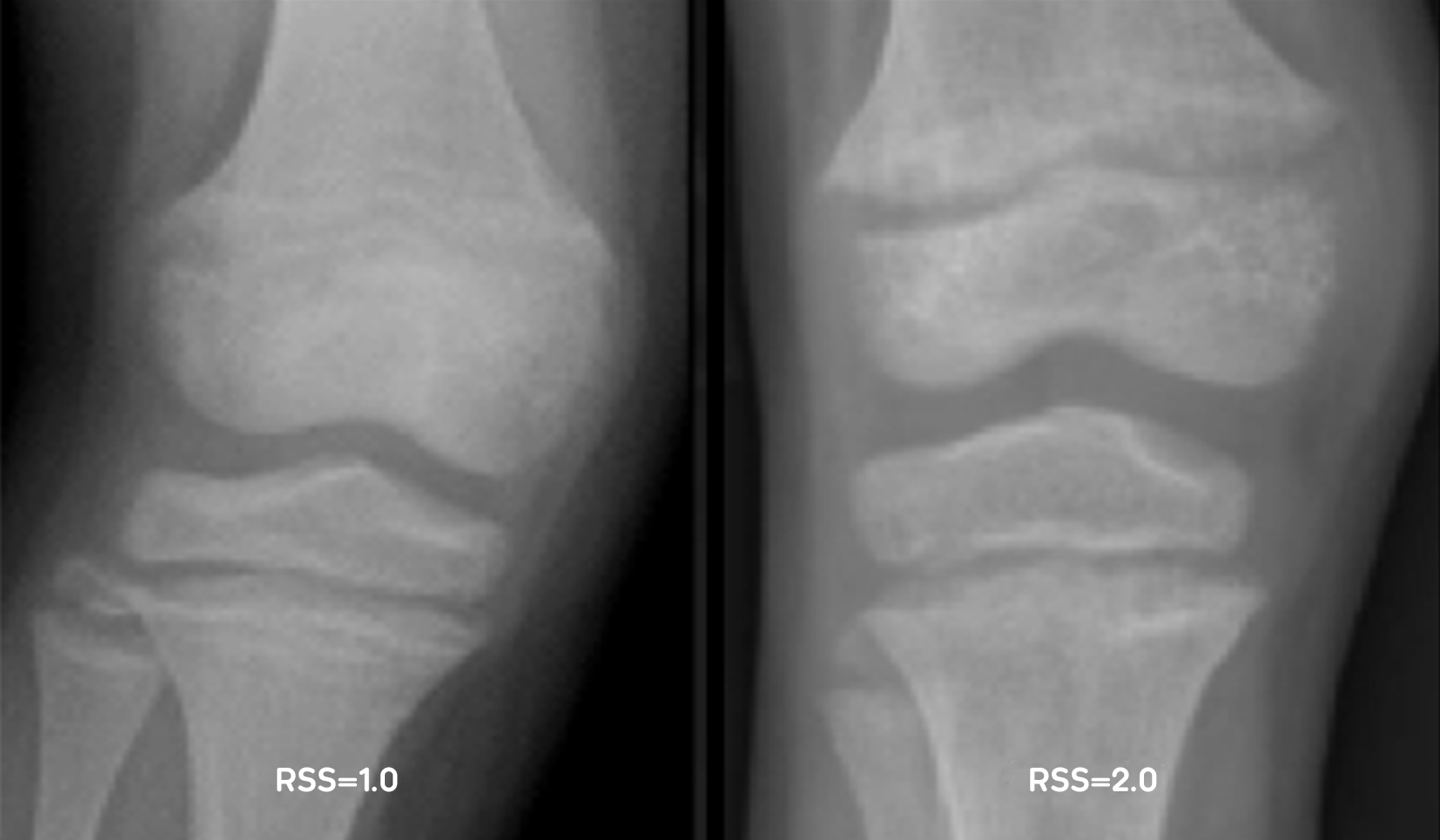 X-ray examples of RSS of 1.0 and RSS of 2.0
