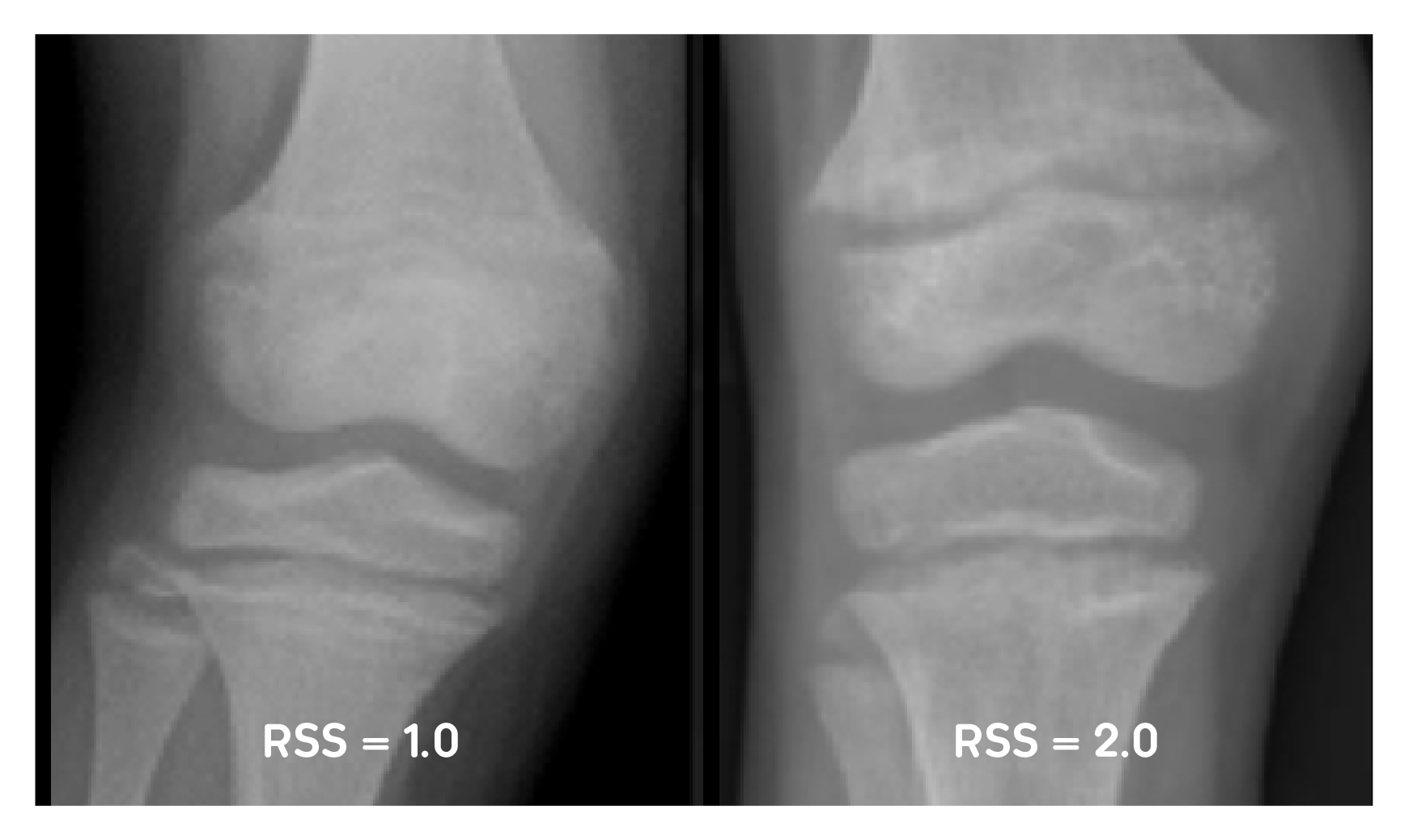 X-ray examples of RSS of 1 and RSS of 2