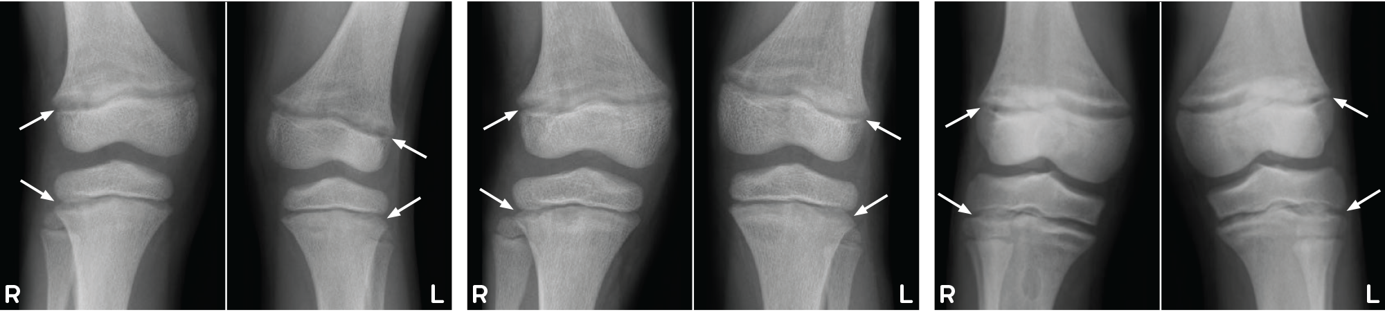 Example radiographs of knees from patient on conventional therapy