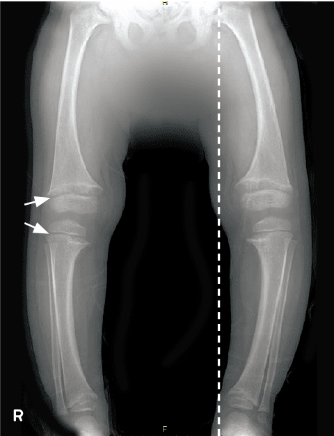 Example radiographs show improvement of lower extremity skeletal abnormality of patient on CRYSVITA