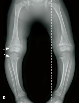 Example radiographs of lower limbs from patient on conventional therapy