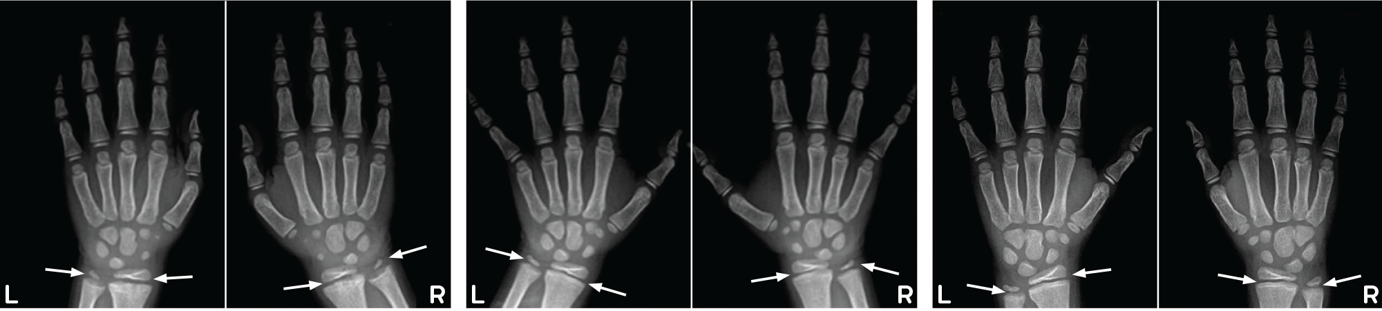Example radiographs of wrists show substantial healing of rickets with CRYSVITA