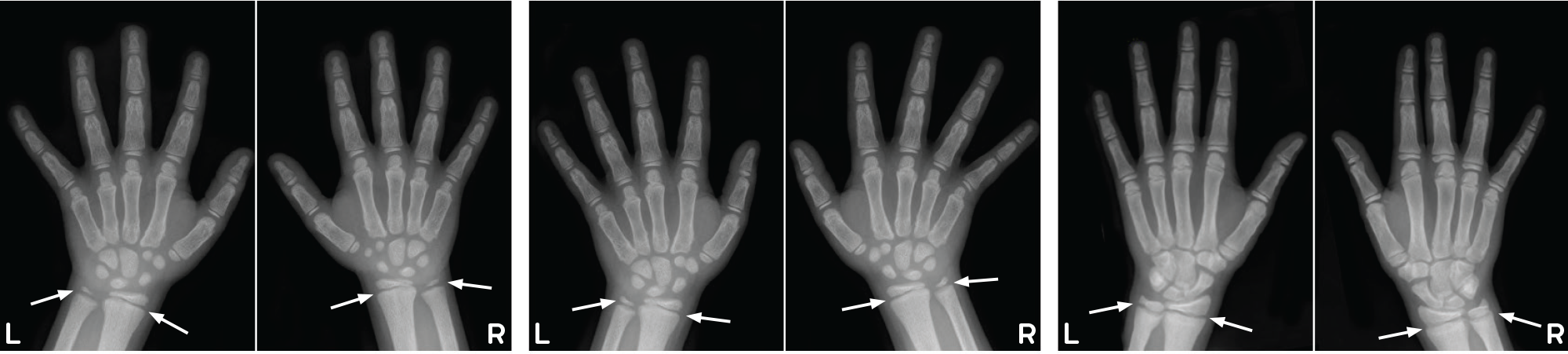 Example radiographs of wrists from patient on conventional therapy