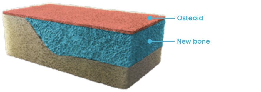 A visual example of 3D normal bone depicting the osteoid layer, new bone layer and old bone layer