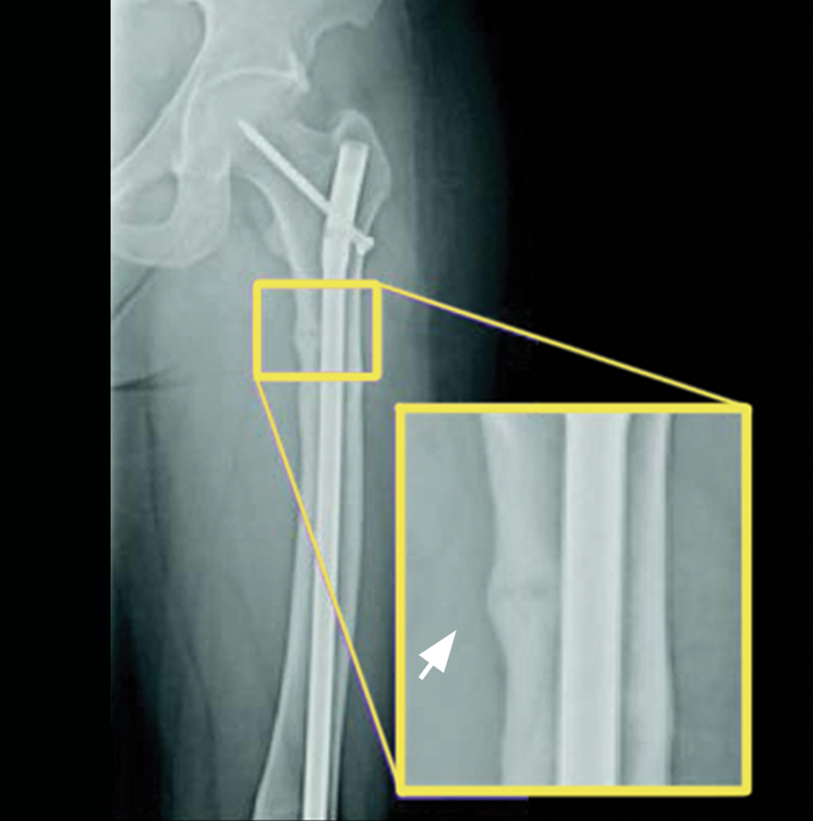 A X-ray example of an adult patient's thigh at baseline, before taking CRYSVITA, showed an active pseudofracture