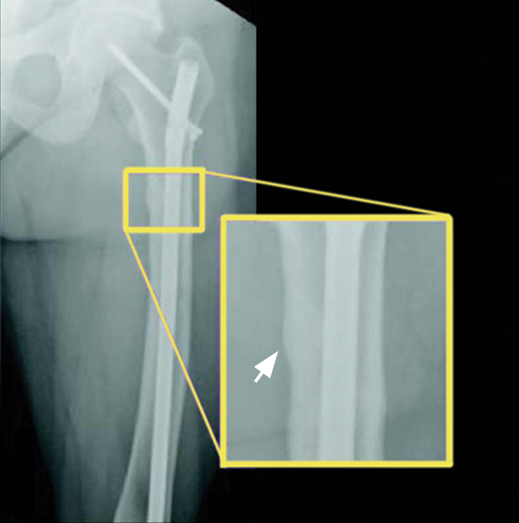 A X-ray example of an adult patient's thigh at Week 24, after taking CRYSVITA every 4 weeks, showed a healed pseudofracture