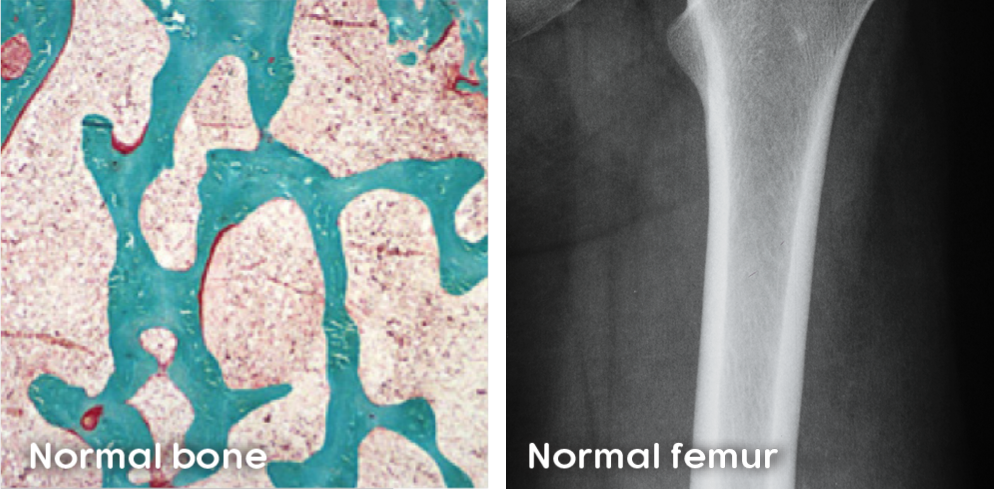 Mineralized bone and unmineralized osteoid in normal bone and normal mineralization in femur bone